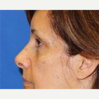 58 year old woman treated with Laser Resurfacing around the eyes before 3849925