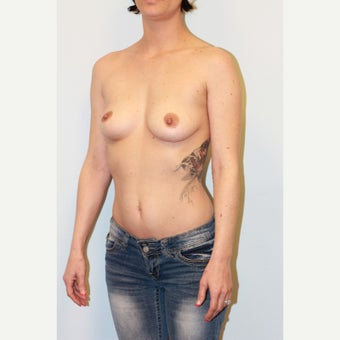 18-24 year old woman treated with Breast Implants before 3027122