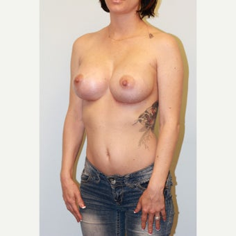 18-24 year old woman treated with Breast Implants after 3027122
