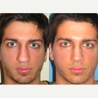 25-34 year old man treated with Rhinoplasty before 3521654