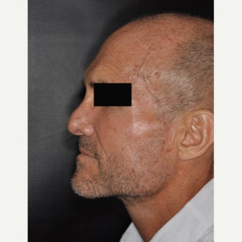 45-54 year old man treated with Septoplasty before 2251518