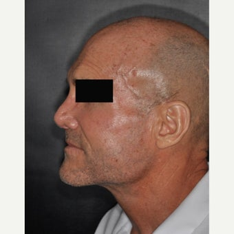 45-54 year old man treated with Septoplasty after 2251518