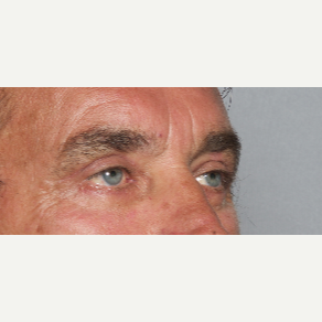 55-64 year old man treated with Eyelid Surgery after 2984207