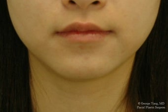 Botox Masseter Reduction for Masseter Hypertrophy and Bruxism (Teeth Grinding) after 1499639