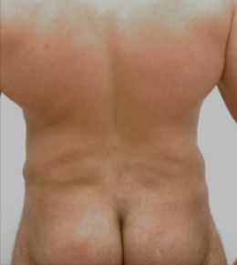 44 year-old male liposuction to the abdomen