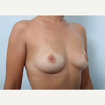 Breast Augmentation before 3459843