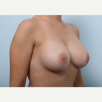 Breast Augmentation after 3459843