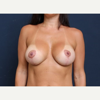 25-34 year old woman treated with Breast Implant Revision after 3344026