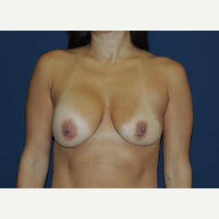 25-34 year old woman treated with Breast Implant Revision before 3344026
