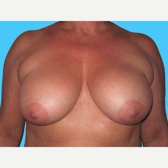 Breast Implant Removal before 3809855