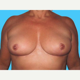 Breast Implant Removal after 3809855
