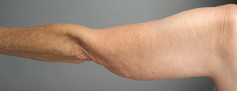 SmartLipo Liposuction of Arms before 275080