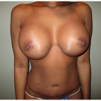 35-44 year old woman treated with Breast Augmentation after 3664753
