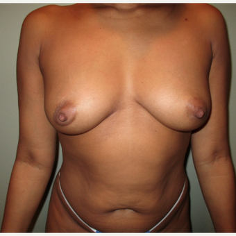 35-44 year old woman treated with Breast Augmentation before 3664753