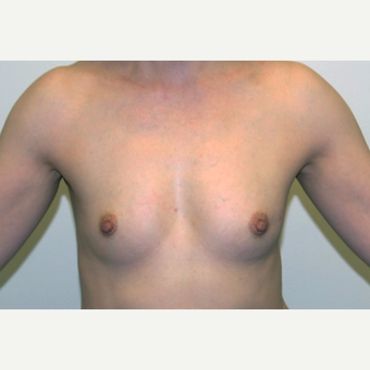 45-54 year old woman treated with Breast Augmentation before 3377503