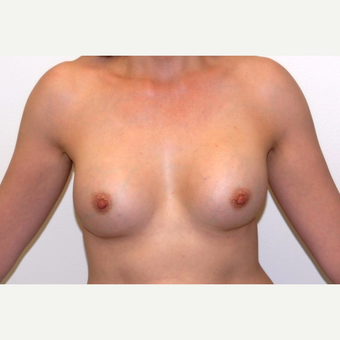 45-54 year old woman treated with Breast Augmentation after 3377503