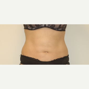 45-54 year old woman treated with Smart Lipo after 3032528
