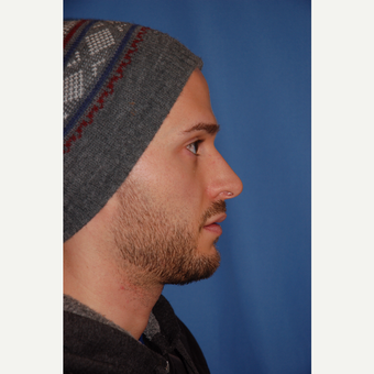 25-34 year old man treated with Rhinoplasty before 3288841