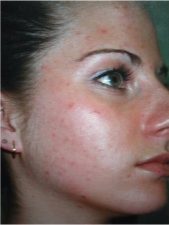 35-44 year old woman treated with Acne Treatment