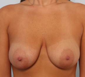 Breast Augmentation after 920111