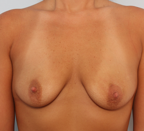 Breast Augmentation before 920111