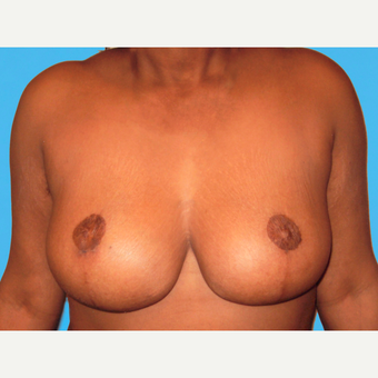Breast Reduction after 3810007
