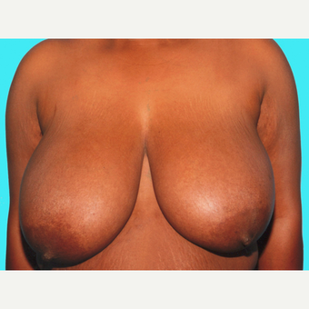 Breast Reduction before 3810007