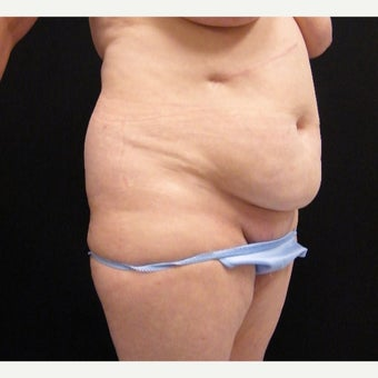 55-64 year old woman treated with Mini Tummy Tuck and SAFELipo of Flanks before 2366187