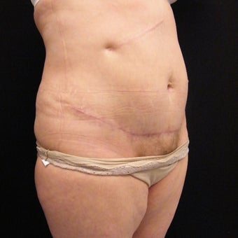 55-64 year old woman treated with Mini Tummy Tuck and SAFELipo of Flanks after 2366187