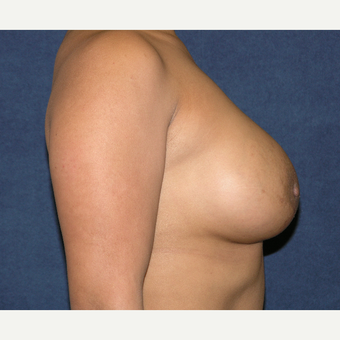 25-34 year old woman treated with Breast Implants after 3455129