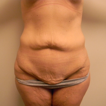 35-44 year old woman treated with Tummy Tuck before 3180318