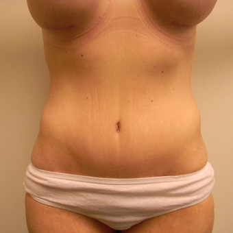 35-44 year old woman treated with Tummy Tuck after 3180318
