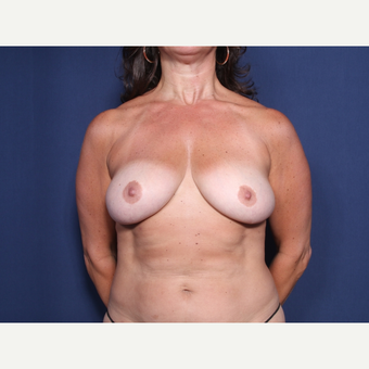 45-54 year old woman treated with Breast Lift with Implants (view 1 of 2) before 3245942