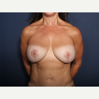 45-54 year old woman treated with Breast Lift with Implants (view 1 of 2) after 3245942