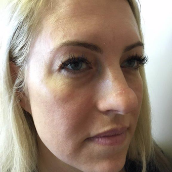 35-44 year old woman treated with Rhinoplasty and upper eyelid blepharoplasty before 2954294