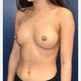 18-24 year old woman treated with Sientra Breast Implants after 3626361