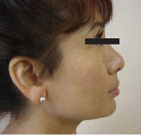 Rhinoplasty after 172982