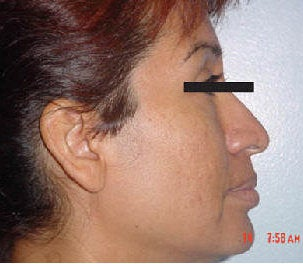 Rhinoplasty before 172982