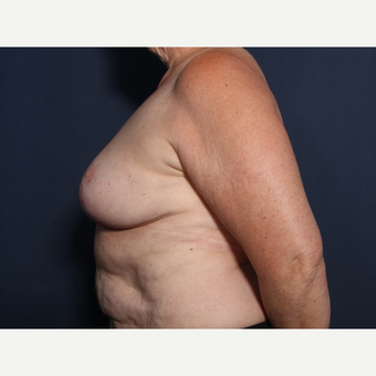 65-74 year old woman treated with Breast Lift (view 2 of 2) after 2881793