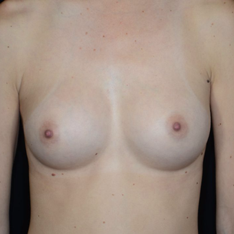 25-34 year old woman treated with Breast Augmentation after 3099100