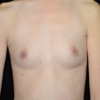 25-34 year old woman treated with Breast Augmentation before 3099100