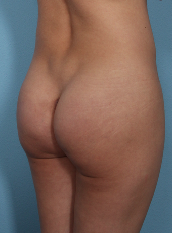Buttock Augmentation with implants, natural results 3487384