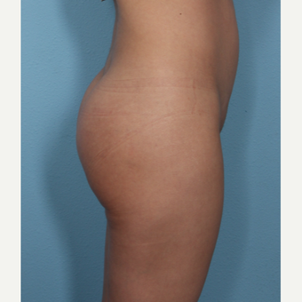 Buttock Augmentation with implants, natural results after 3487384
