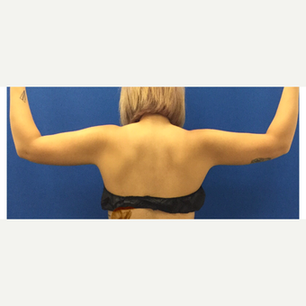 Liposuction of the Arms after 3072339