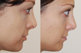 Non-Surgical Nose Job before 213045