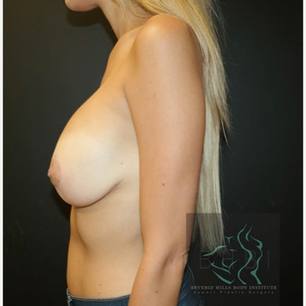 25-34 year old woman treated with Breast Lift after 3109639