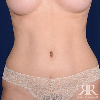Tummy Tuck after 1285658