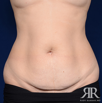 Tummy Tuck before 1285658