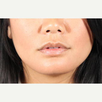 25-34 year old woman treated with Lip Augmentation before 3850948