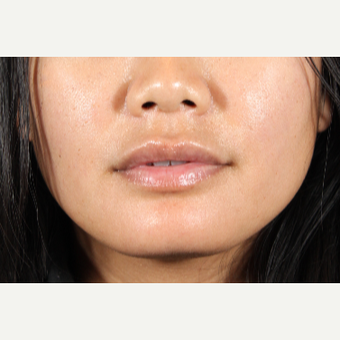 25-34 year old woman treated with Lip Augmentation after 3850948